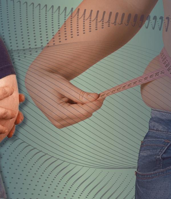 Sleeve Gastrectomy