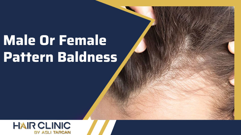Male Or Female Pattern Baldness